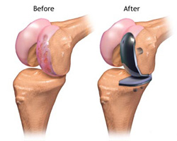 before and after image of partial knee replacement